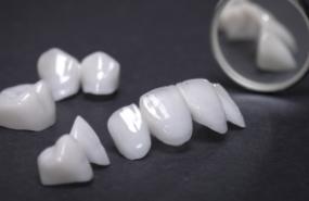 Dental Crowns & Bridges Michigan