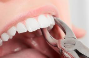 Dental Extractions Michigan