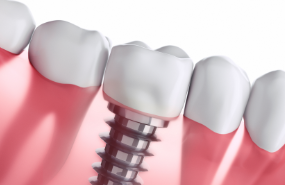 Dental Implants Michigan