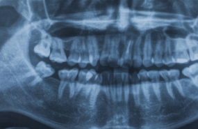 Dental X-Rays Michigan