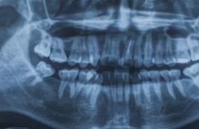 Dental X-Rays Michigan