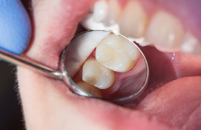 Endodontic Treatment Michigan