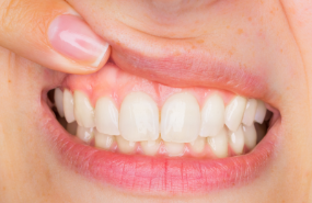 Gum Disease Treatment Michigan