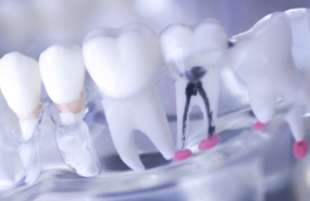 Root Canal Treatment - Local Michigan Dentist | Lifetime Dental Group - root-canal-dentist