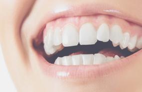 Teeth Cleanings & Fillings - Michigan