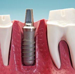 dental-implants-canton-michigan-dentist