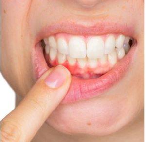 dentist-canton-michigan-south-lyon-gum-disease