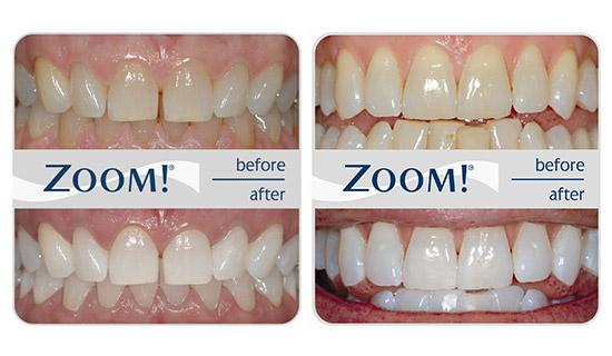 Zoom Teeth Whitening Michigan