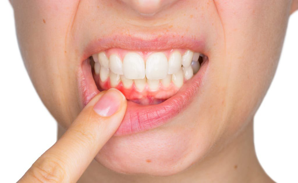 gingivitis_Bleeding_Gums_gum_disease_michigan